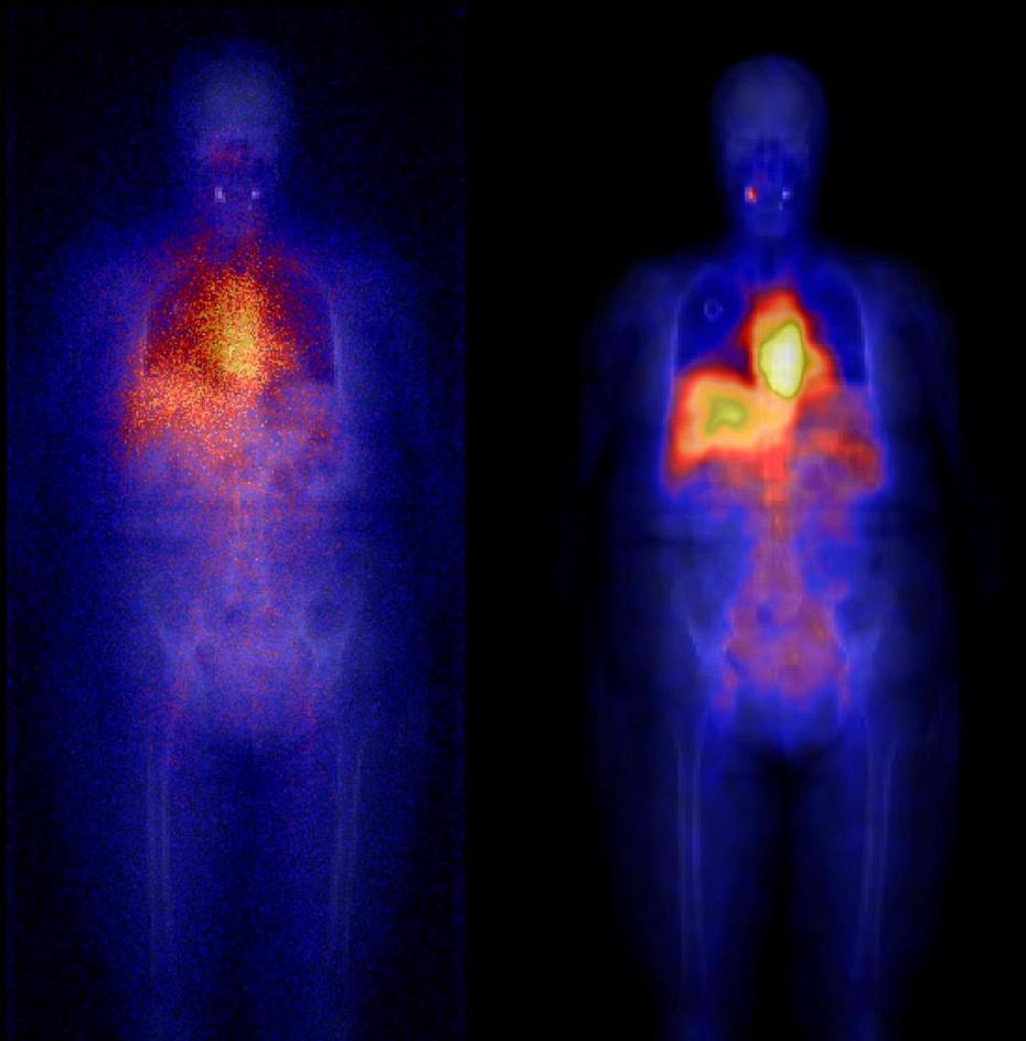 Радионуклидная терапия при метастазах