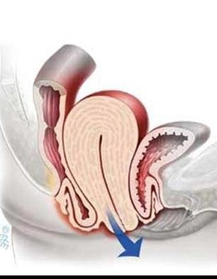 simptomi-opushenie-stenok-vlagalisha