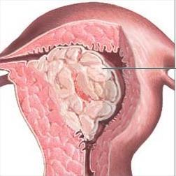 брови эндометрия с железами пролеферативного типа фиброзной стромой стремимся поддерживать