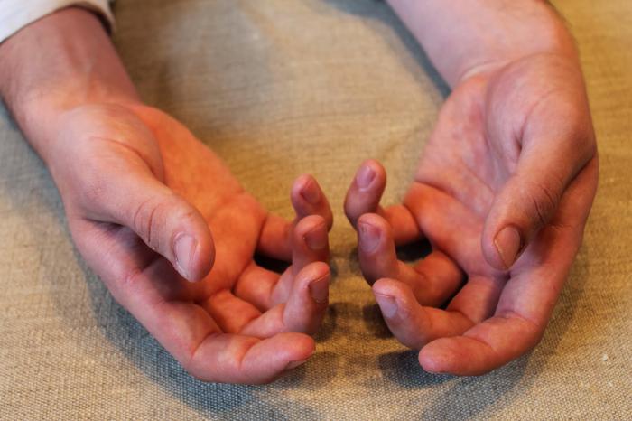 немеет указательный палец правой руки