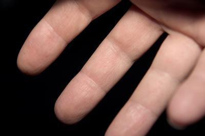 немеет безымянный палец правой руки