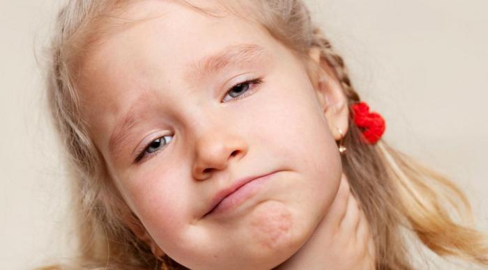 признаки ангины у ребенка