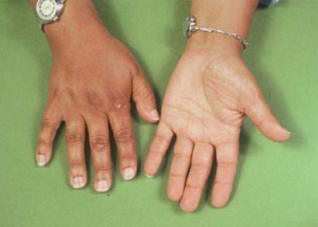 симптомы болезни надпочечников