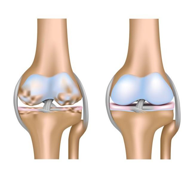 искусственные хрящи для коленного сустава
