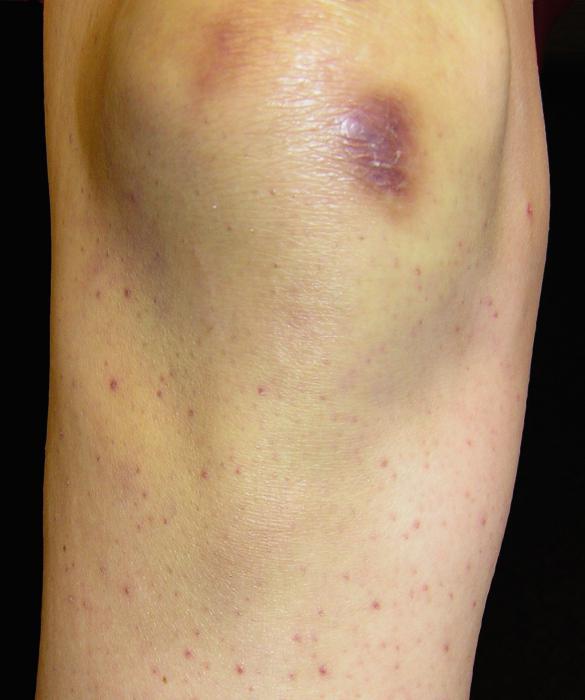 Цинга условия возникновения осложнения лечение