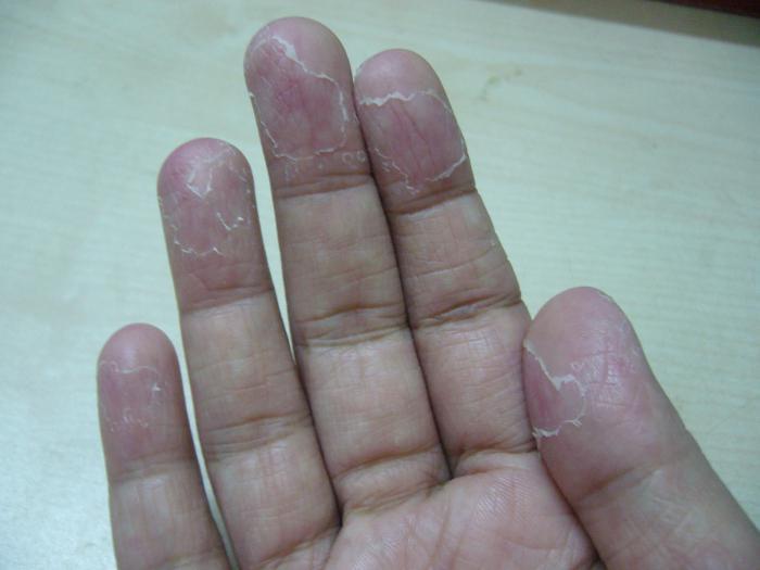 Почему у ребенка слезает кожа на пальцах