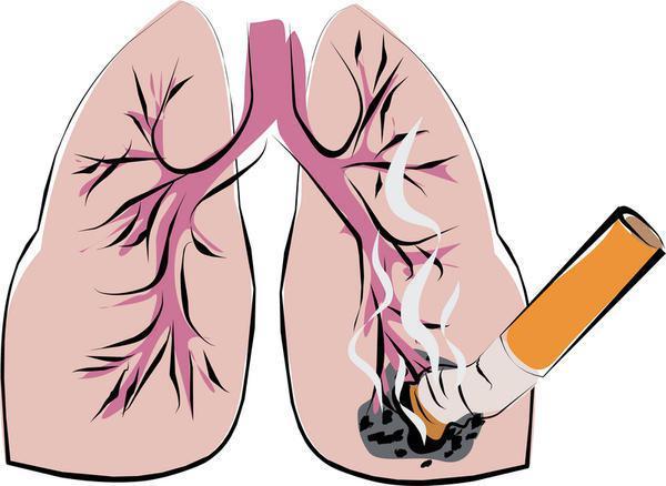 Сильный кашель - боль в груди
