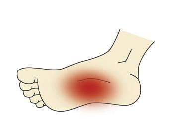 растяжение связок ноги симптомы