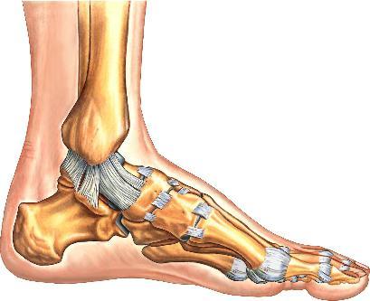 растяжение связки на ноге
