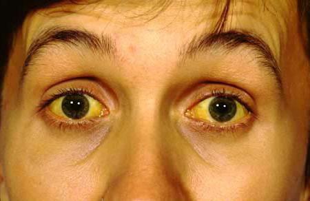 паренхиматозная желтуха патогенез