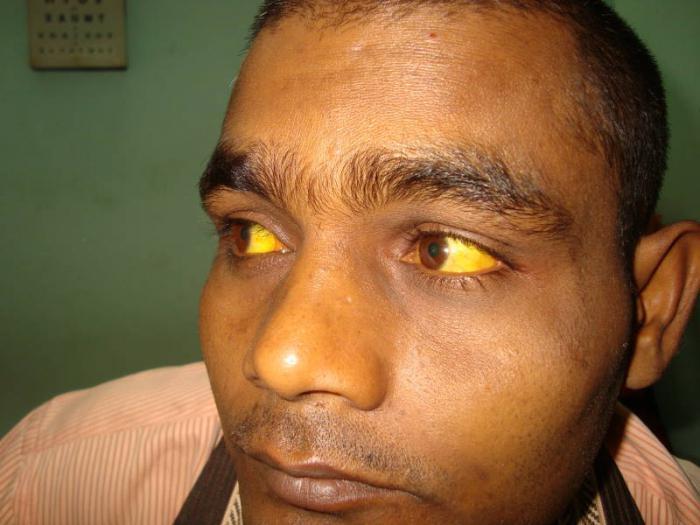 причины паренхиматозной желтухи