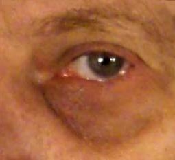 лечение синяка под глазом