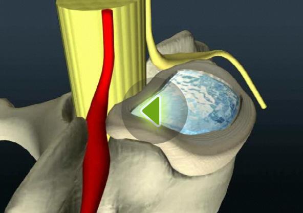 грыжи шейного отдела позвоночника лечение