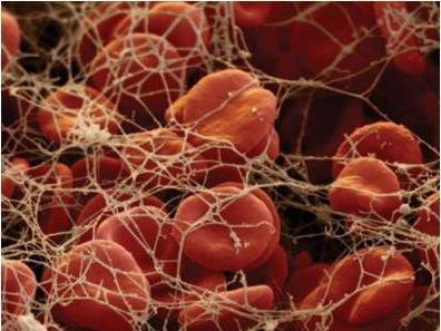 mpv в анализе крови - норма