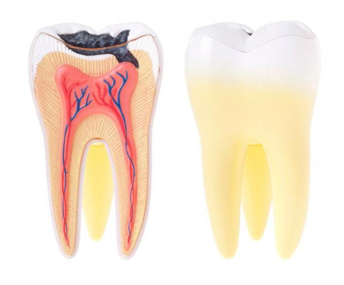 пульпит зуба что это такое